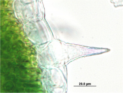 Cannabis sativa - OleMiss - Epidermal cells with cystolithic trichome.png